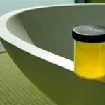 Уринотерапия приложение в домашни условия