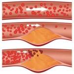 Холестерол рискови фактори и заболявания
