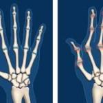 Ревматоиден артрит диагностика симптоми лечение