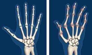 Ревматоиден артрит - белези и симптоми | orientandoo.com