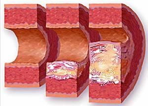 Атеросклероза същност рискови фактори лечение