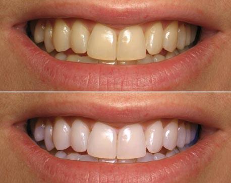 Избелване на зъби с кокосово масло